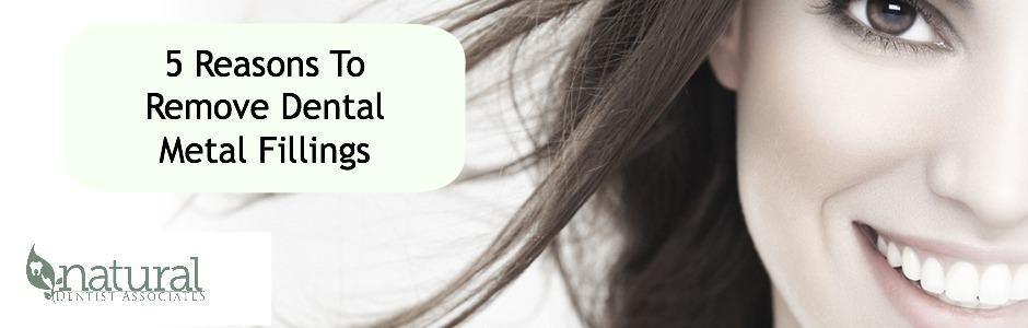 5 Reasons to Remove MetaL Fillings