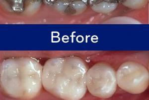 Can Ozone Cure Cavities