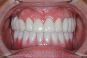 tooth implant dentist