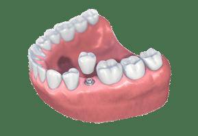 implant dentist rockville