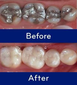 mercury free dentist