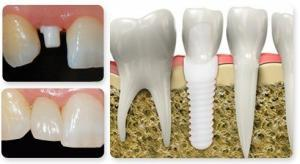 zirconia dental implants