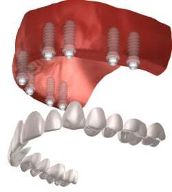 full mouth dental implants in north bethesda md