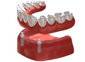 dental implant over denture