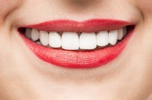 teeth whitening dentist