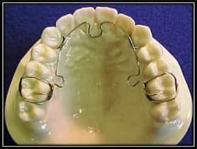 ALF dental appliance