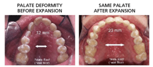 Alf Dentist And Alf Appliance For Tmj Dysfunction And