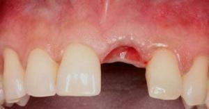 wisdom tooth healing days 1-2