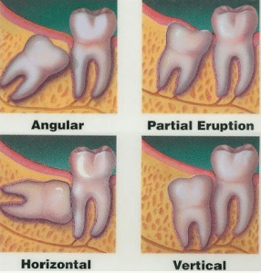 How long is Recovery Period after Wisdom tooth Removal? | NDA