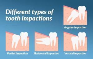 impacted wisdom teeth types