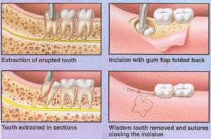 Wisdom Teeth Removal | Natural Dentist Associates